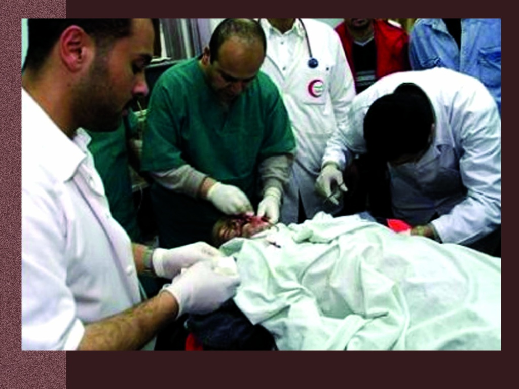 Drs at Hospital trying to save Rachel Corrie